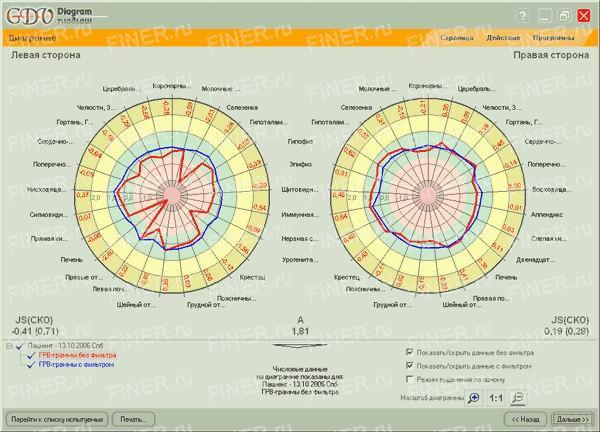 GDV Diagram (ГРВ диаграмма) - программа для прибора ГРВ